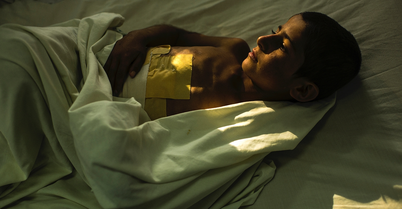 A boy with a large dressing on his abdomen lies in a bed
